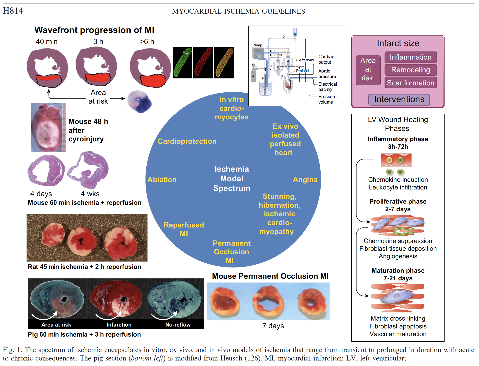 Guidelines for experimental models of myocardial ischemia and infarction